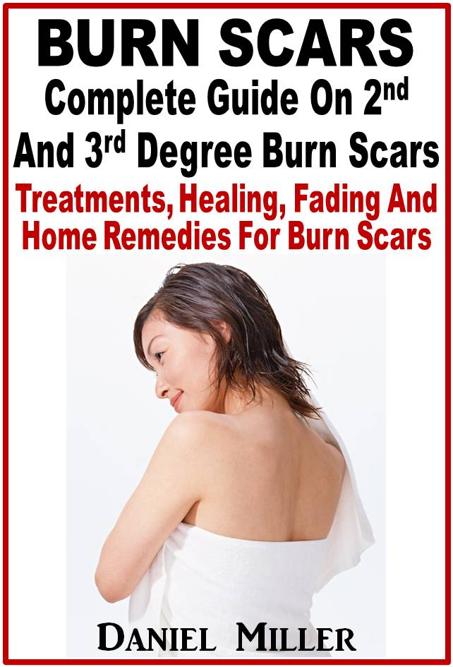 Smashwords – Burn Scars : Complete Guide On 2nd And 3rd Degree Burns