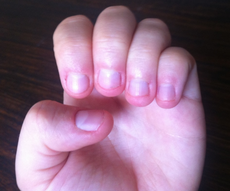 Smashwords – Grow Your Nails: Quit Even The Worst Nail Biting Habit ...